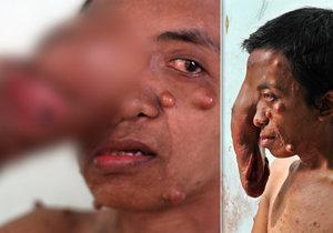 Muž (34) z Indonésie bojuje s gigantickým nádorem: Podstoupil už několik operací, vždycky doroste!