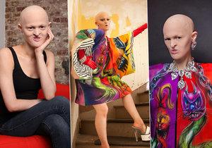 Melanie Gaydos trpí vzácnou nemocí, ale dotáhla to až do světa modelingu.