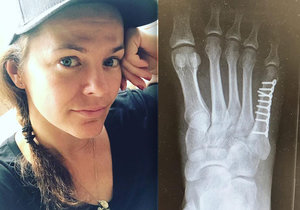 Marta Jandová se pochlubila dalším rentgenem.