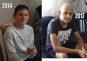 V roce 2014 byl Jakub ještě zdravý sportovec, nyní doufá, že se pro něj najde vhodný dárce.