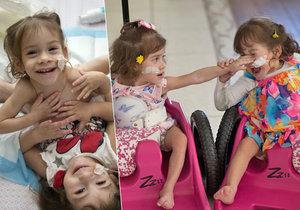 Eva a Erika se narodila jako siamská dvojčata. Po operaci je jim mnohem lépe.