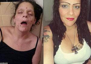 Melissa byla léta závislá na heroinu. Když závislost porazila, sdílela své šokující fotky z dřívějška, aby pomohla ostatním.