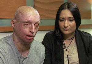 Mladému Američanovi znetvořila expartnerka tělo kyselinou. Nyní žije se svou ošetřovatelkou