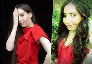 Slovenka Ivanka Danisová podstoupila operaci, po níž by měla vypadat normálně.