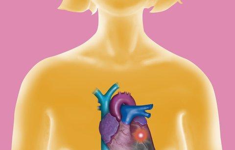 Mýty a pravdy o srdeční arytmii: Může to potkat i vás!