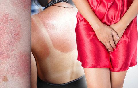 Přichází léto a s ním opruzeniny i spálená pokožka: Jak na nejčastější trable?