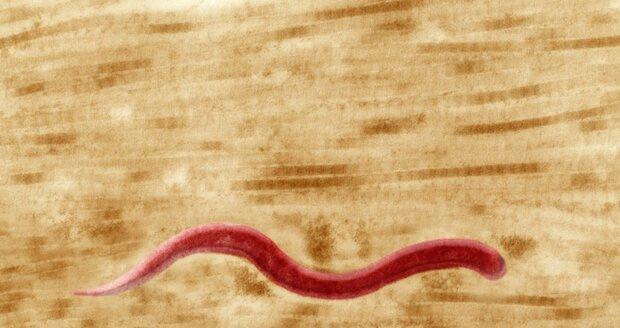 Syfilis pod mikroskopem, při neléčení může způsobit i smrt