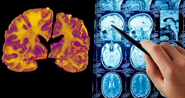 Nová léčba alzheimerovy choroby od australských vědců! Pacientovi vrátí až 75% paměti!