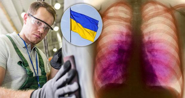 V Česku rychle roste počet cizinců, kteří mají tuberkulózu (ilustrační foto).