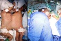 Obrovský úspěch lékařů: Oddělili osm dní stará siamská dvojčata!
