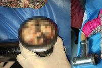 Dívka (6) si rozdrtila prsty v mlýnku na maso, hrozí jí ztráta celé ruky
