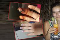 Traktůrek amputoval ženě 2 prsty. Radka (26): Mám je zpátky a rostou mi i nehty