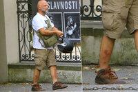 Herec Hynek Čermák odhalil úplně sedřené holeně. Tohle muselo bolet!