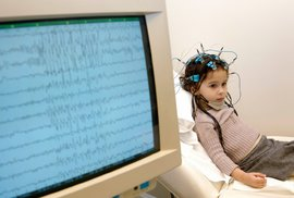100 000 tisíc lidí u nás trpí epilepsií. Co přesně dělat a jak pomoci epileptikům…