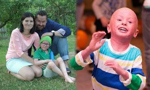 Martínek má nemoc kůže ichtyózu. Každý měsíc mu rodiče kupují masti za 15 tisíc