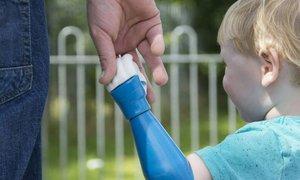 Dvouletý kluk si hraje jako každé dítě díky umělé ruce