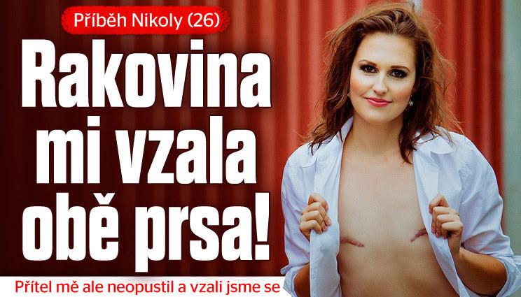 Nikola přišla o obě prsa