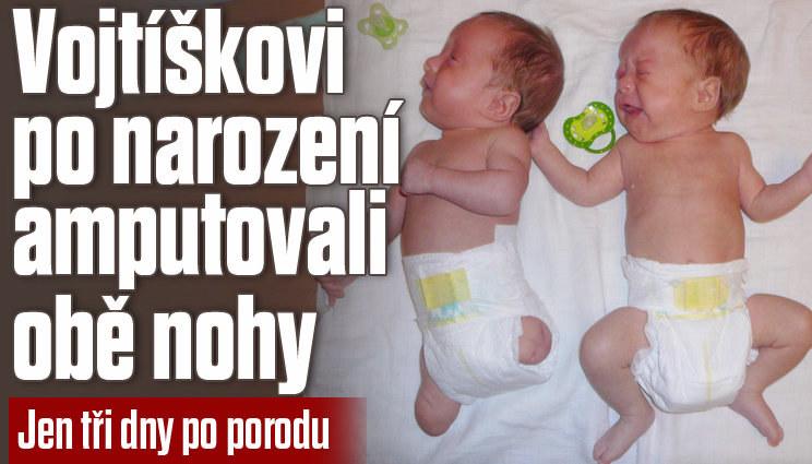 Vojtíškovi amputovali nohy 3 dny po porodu