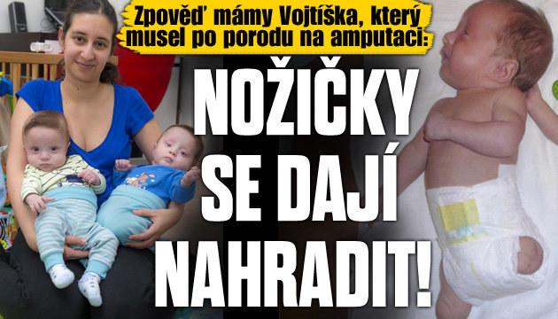 Zpověď matky miminka po amputaci
