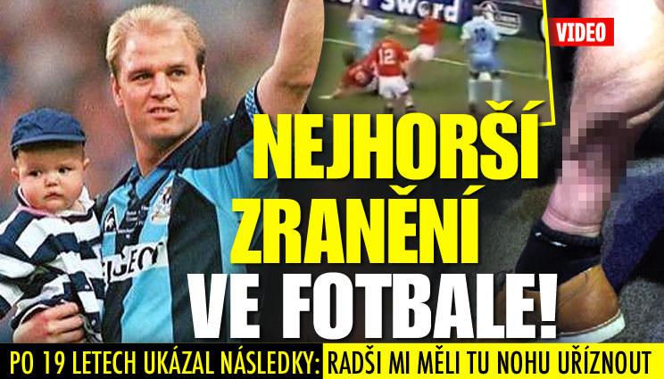 Fotbalista ukázal, co mu způsobilo hrozivé zranění