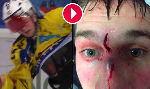 Krvavé divadlo. Nespravedlivá hokejová pomsta skončila děsivě