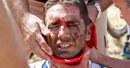 Třetí etapu Tour ovládl Rodriguez, Cancellara po pádu přišel o trikot
