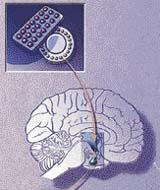 hypothalamus, hypofýza