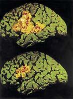 Dyslektik při čtení využívá daleko menší oblast svého mozku než člověk, který dyslexií netrpí. Na obrázku je tato plocha v levé mozkové hemisféře vyznačena červenou a žlutou barvou