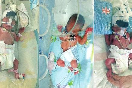 Šest dní po narození chlapce porodila Číňanka dvojčata. A to byla neplodná