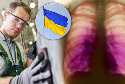 Cizinců s tuberkulózou přibývá: Do Česka ji přináší hlavně pracovníci z Ukrajiny