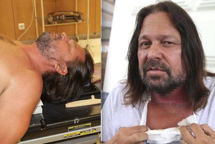Pomeje je na operačním sále: Právě teď mu odebírají hlasivky a hrtan kvůli rakovině!