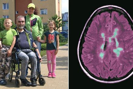 Alena kvůli roztroušené skleróze dostala výpověď. Rodina skončila v dluzích