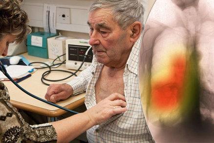 Zabiják Čechů: Vážnou plicní chorobu si často pletou s astmatem, pro pomoc chodí pozdě