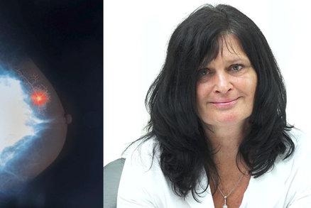 Pacientka s rakovinou prsu v pokročilém stádiu: Pro úředníky jsme jen čísla! Léčbu si musím platit sama
