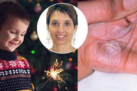 Vánoce a Silvestr plný rizik: První pomoc při popáleninách! Co určitě nedělat?