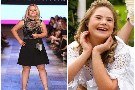 Nic není nemožné: 14letá dívka s Downovým syndromem je hvězdou módních přehlídek