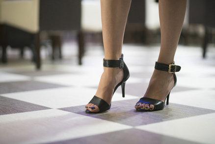 Univerzální sandály, které vždycky vypadají luxusně? Koupíte je už od pětistovky