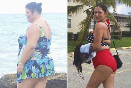 Po zhubnutí jí zůstalo 5 kilo přebytečné kůže! Jak s ní naložila?