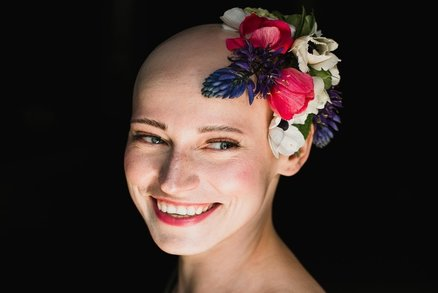 Blance (31) vypadaly vlasy, obočí i řasy. Handicap proměnila v zábavu a pomáhá dalším ženám