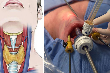 Poprvé v Česku: Lékaři z Brna operovali ženě štítnou žlázu ústy! Nebude mít jizvu