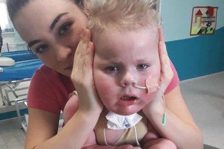Nechte Oliverka zemřít, řekli v Motole: Rodiče Maxíka podpořili názor lékařky