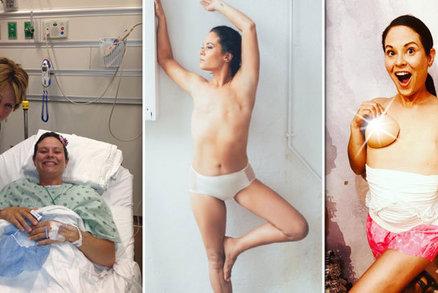Máma (41) přišla kvůli rakovině o obě prsa: Svůj plochý hrudník se naučila milovat