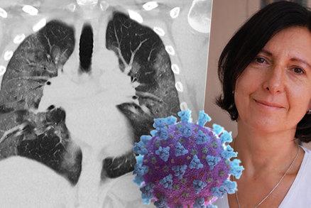 Naše zdravotnictví nezkolabuje, věří přední pneumoložka. Co řekla o plicích a covidu?