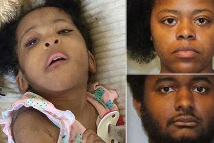 Dívenka (†5) před smrtí vážila pouze 3 kila! Její rodiče obvinili z vraždy a týrání