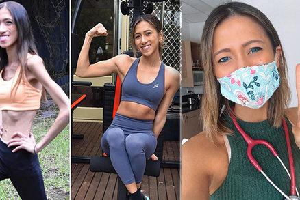 Studentka medicíny popsala svůj boj s anorexií: Běhala jsem, až mi krvácely nohy!