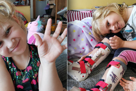 Nemocná Péťa (6) se bez pomoci neobejde: Rodiče pro ni musí kompletně přestavět domov