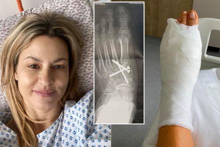 Monika Marešová znovu v nemocnici! Zlomený prst a šrouby v noze