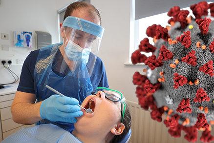 Koronavirus a zuby: Může nákaza způsobit vypadávání stoliček? Lékaři jsou na vážkách