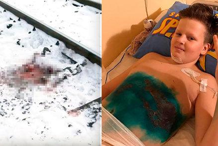 Chlapce (11) připravil vlak o obě nohy: Kamarádi ho nechali umírat a utekli
