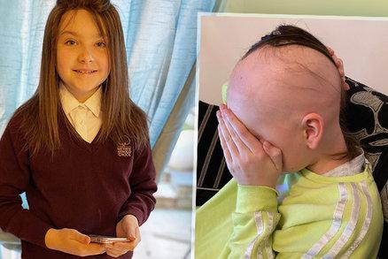 Holčičce (12) začaly padat vlasy po trsech: Našla nové sebevědomí, ale rodiče se bojí šikany